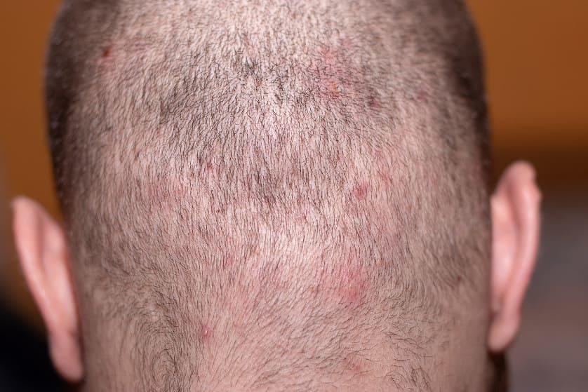 Mann mit Kopfhaut Erkrankung