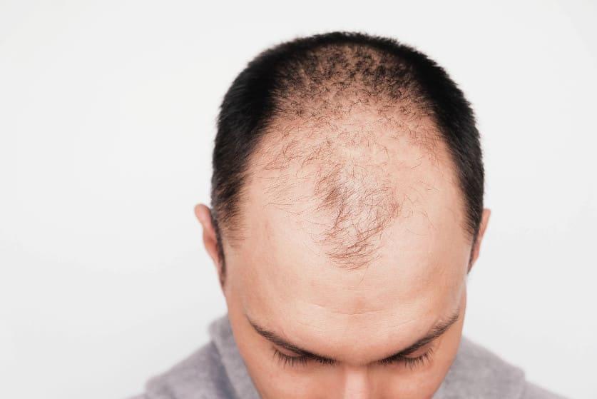 Mann mit Haarausfall hält seinen Kopf gesenkt in die Kamera
