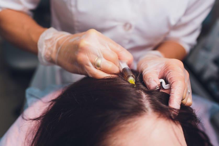 Frau unterzieht sich einer PRP Behandlung