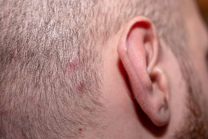 Nahaufnahme der Kopfhaut eines Mannes mit Ekzemen