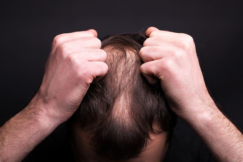 Mann mit kreisrundem Haarausfall rauft sich die Haare