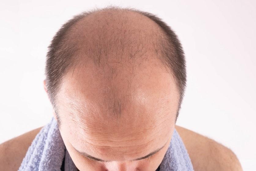 Nahaufnahme des Kopfes eines Mannes mit starkem Haarausfall