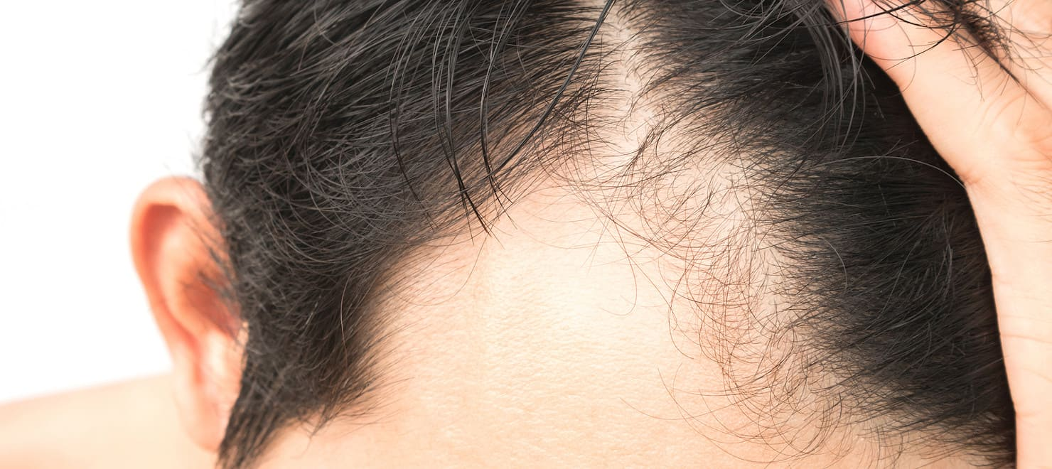 Alternativen zur Haartransplantation