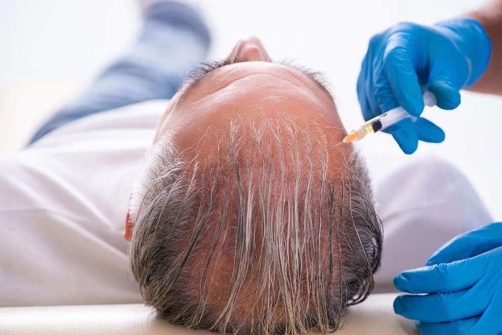 Patient erhält eine PRP Behandlung als Alternative zur Haartransplantation