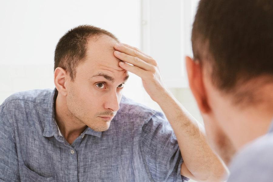 Mann mit starkem Haarausfall nach Grippe steht vor dem Spiegel und begutachtet seinen Haarschwund