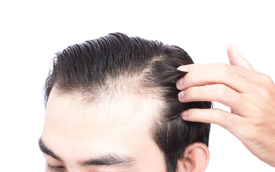 Nahaufnahme des Kopfbereichs eines Mannes, der unter Haarausfall durch Stress leidet