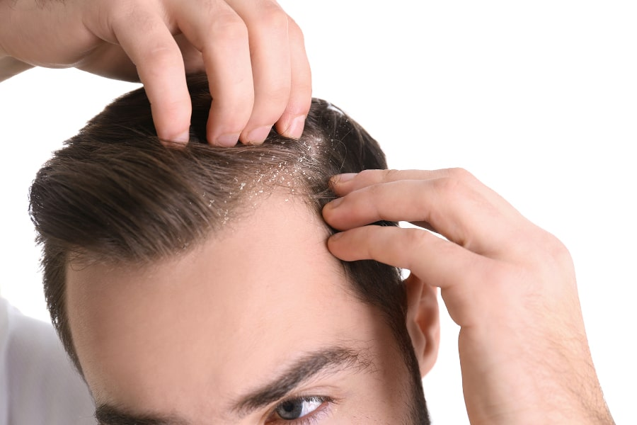 Kopfhaut Pilz und Haarausfall
