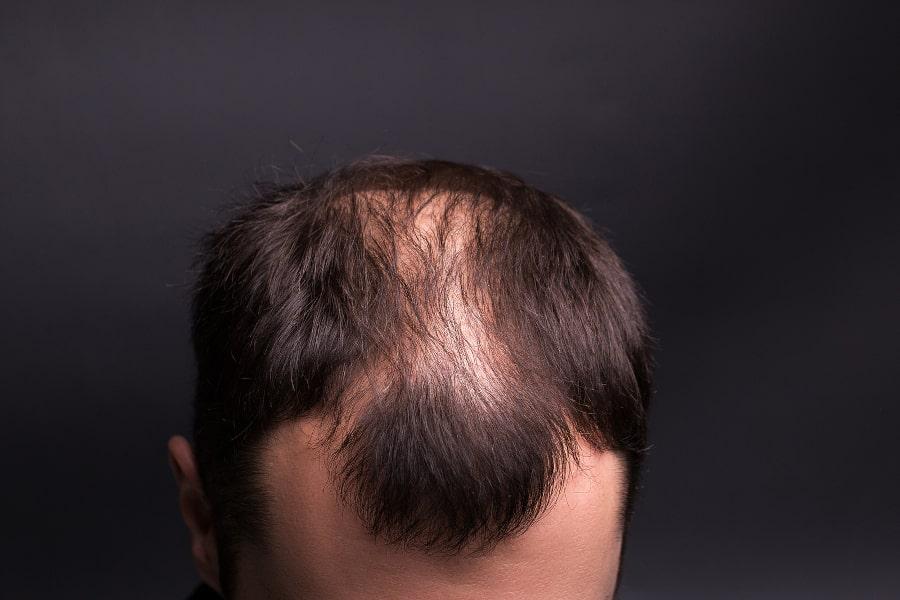 Nahaufnahme vom Haarausfall eines Teenager auf der Kopfoberfläche