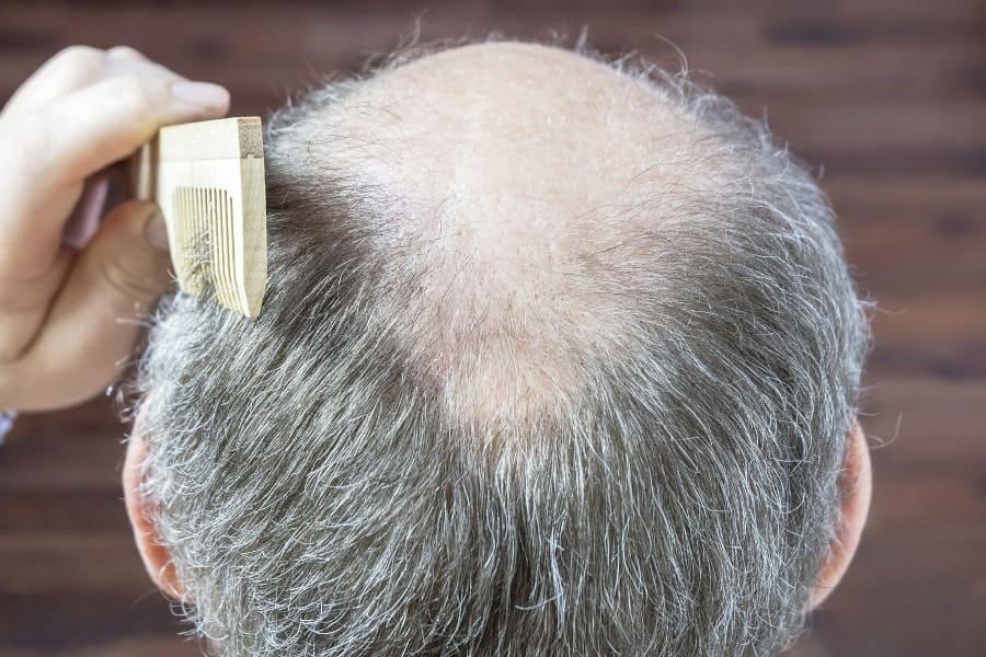 Hinterkopf eines Mannes mit angehender Glatze und ergrautem Haar