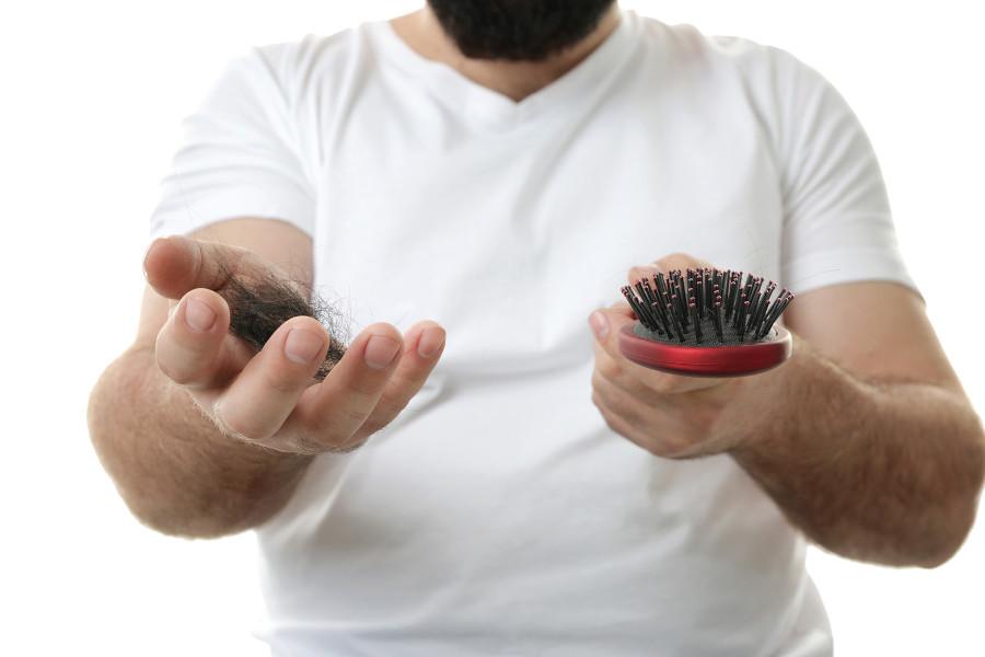 Mann zeigt Haarbüschel und Kamm als Zeichen einer Haartransplantation Nebenwirkung