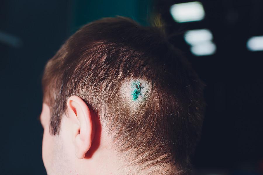 Junger Mann mit Narbe nach der Haartransplantation