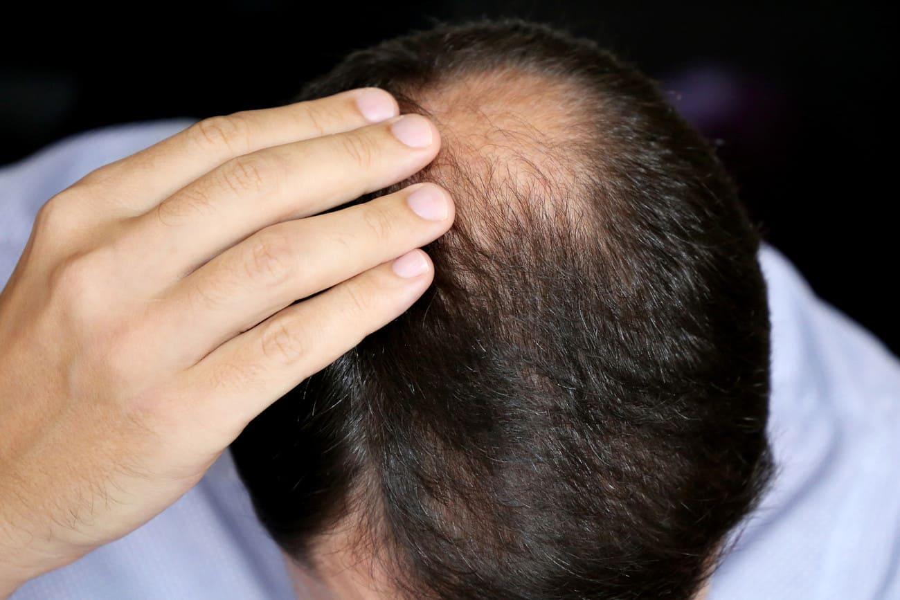 Mann fasst sich an den Hinterkopf, wo starker Haarausfall zu erkennen ist.