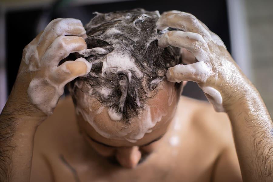 Mann wäscht seine Krusten nach der Haartransplantation