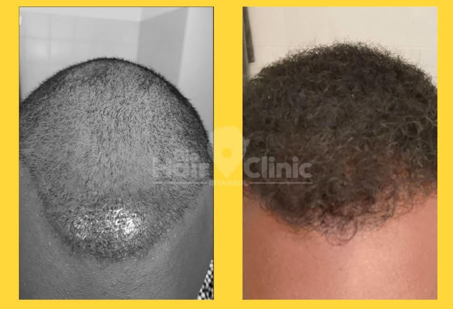 Vorher Nachher Ergebnis einer Haartransplantation in der Türkei bei Bio Hair Clinic
