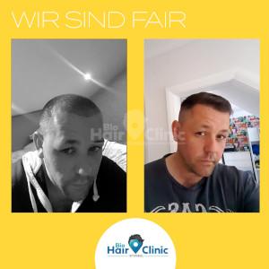 Vorher nachher Vergleich eines Patienten nach einer Haartransplantation.