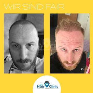 Unterschied der Haare eines Patienten nach der Haarimplantation.