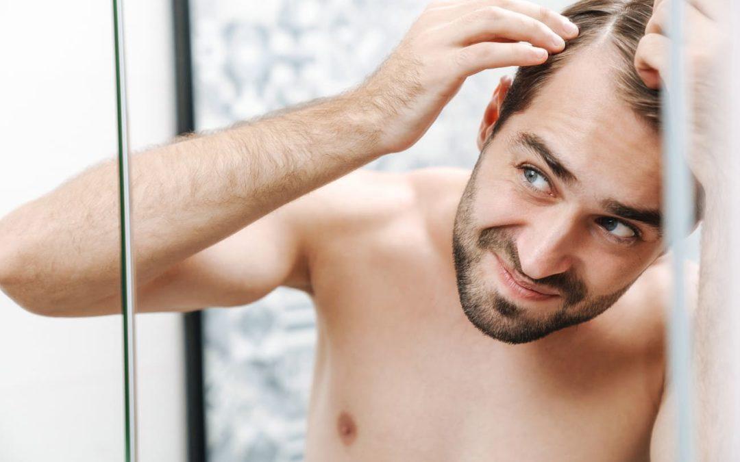 Frühzeitiger Haarausfall – So viele Menschen sind betroffen!