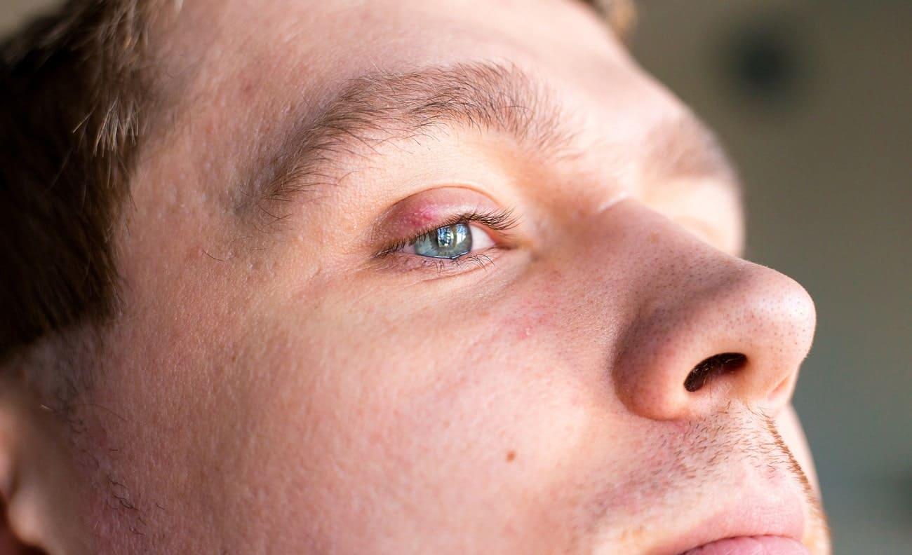 Nahaufnahme eines geschwollenen Auges