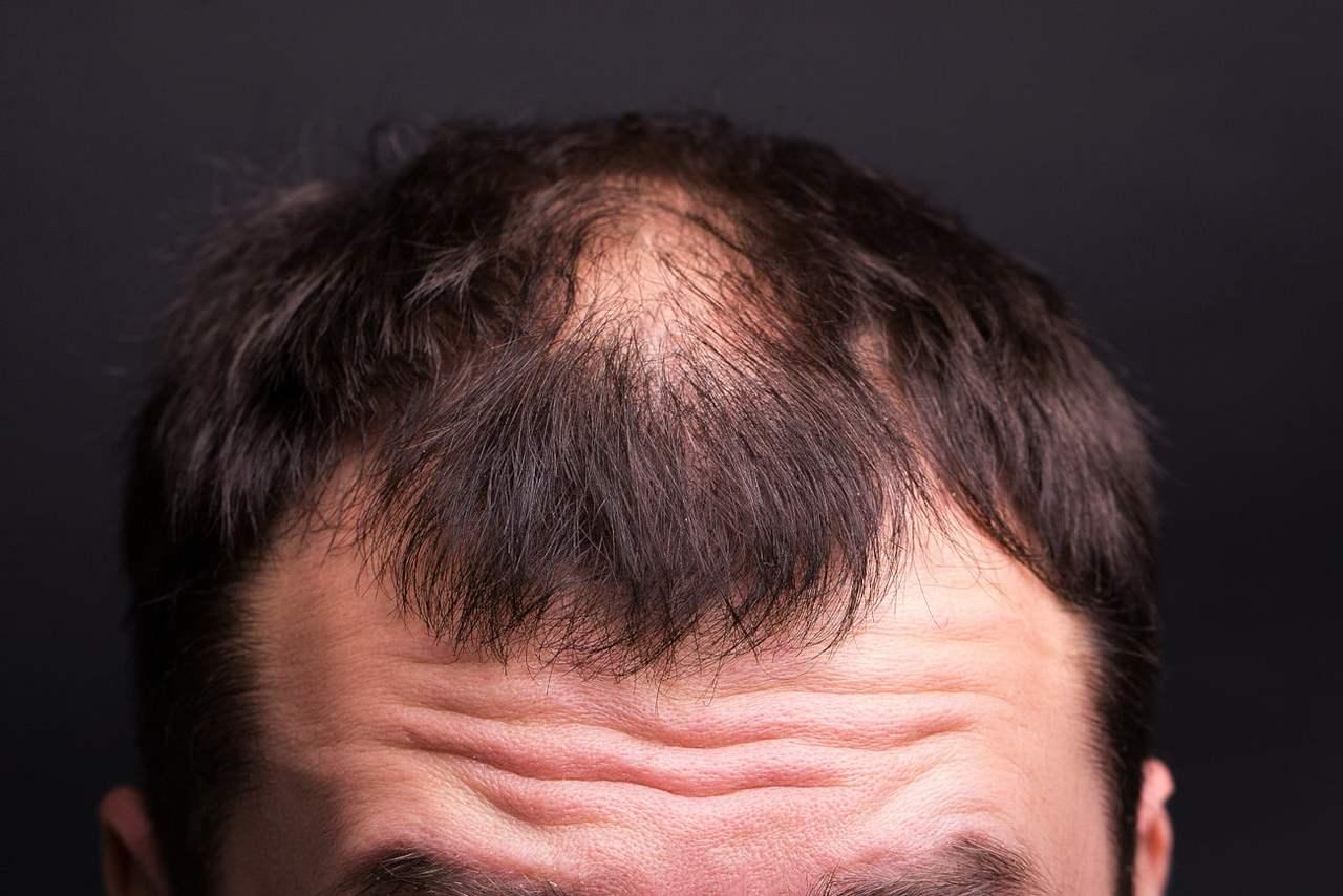 Nahaufnahme des Oberkopfes eines Mannes mit starkem Haarausfall