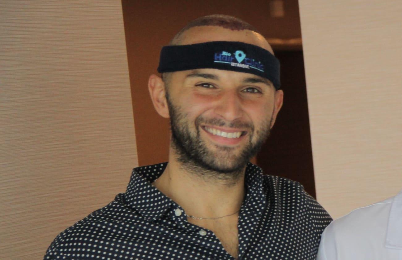 Mann grinst in die Kamera nach seiner Haartransplantation.