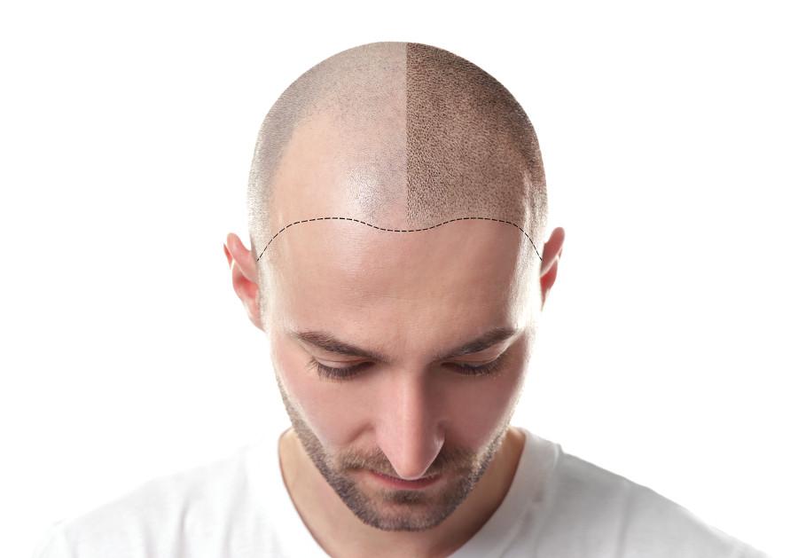 Vergleichsbild eines Mannes mit Glatze und der Auswirkung einer Haarpigmentierung. Links ohne Behandlung, rechts mit Behandlung.