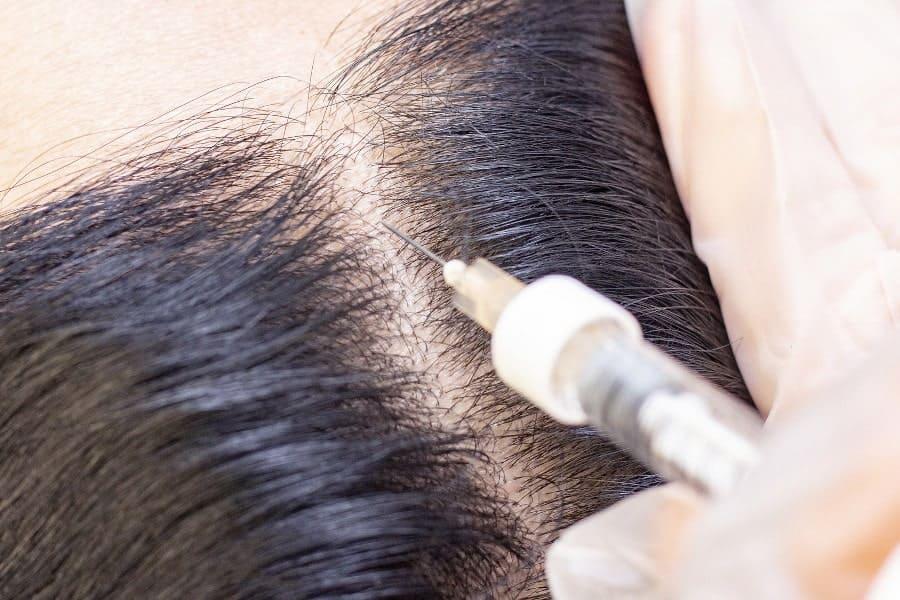 PRP Behandlung Alternative zur Haartransplantation, Alter unabhängig.