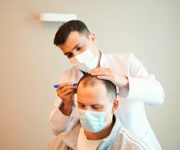 Dr. Ibrahim beim einzeichnen der Haarlinie für die Haartransplantation
