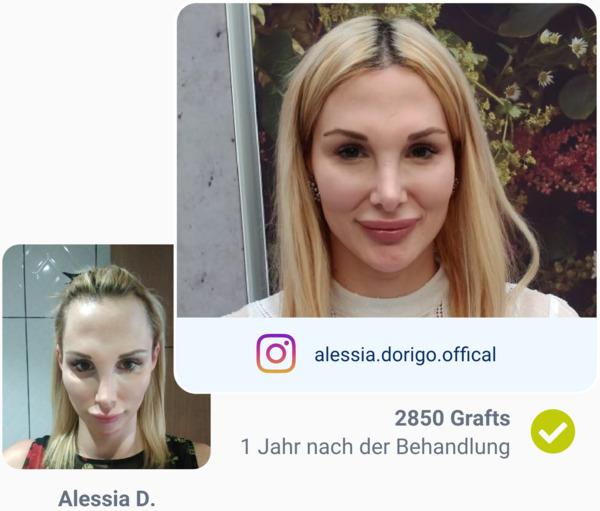 Patienten vor und nach der Haartransplantation in der Türkei