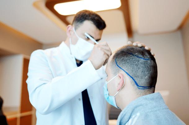 Dr. Ibrahim zeichnet bei einem Patienten die Haarlinie ein