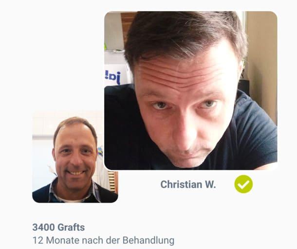 Patient Christian im Haartransplantation Vorher Nachher Vergleich