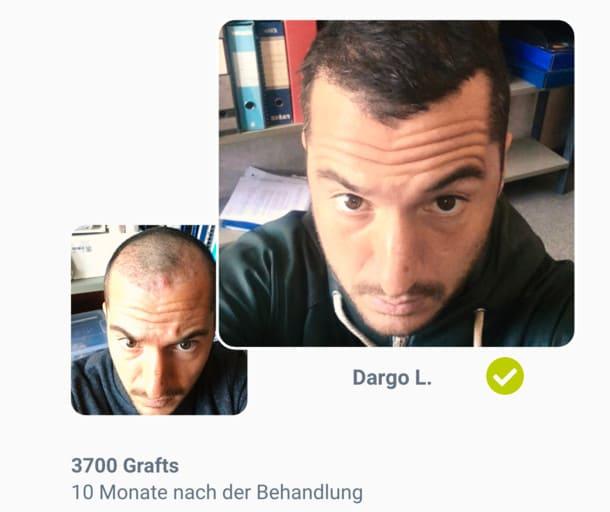 Patient Dargo im Haartransplantation Vorher Nachher Vergleich