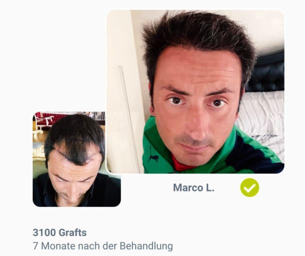 Patient Marco im Haartransplantation Vorher Nachher Vergleich