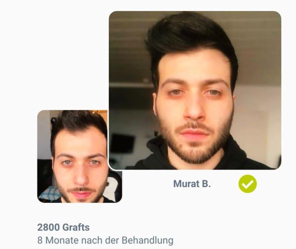 Patient Murat im Haartransplantation Vorher Nachher Vergleich