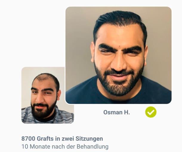 Patient Osman im Haartransplantation Vorher Nachher Vergleich