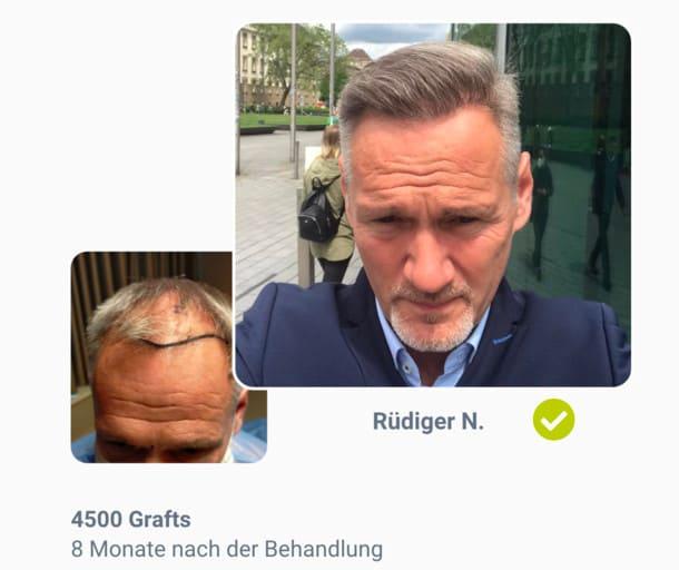 Patient Rüdiger im Haartransplantation Vorher Nachher Vergleich