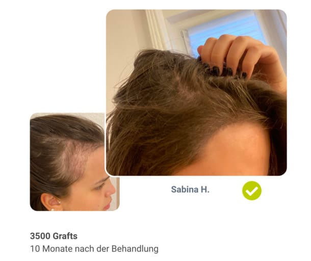 Patientin Sabina im Haartransplantation Vorher Nachher Vergleich
