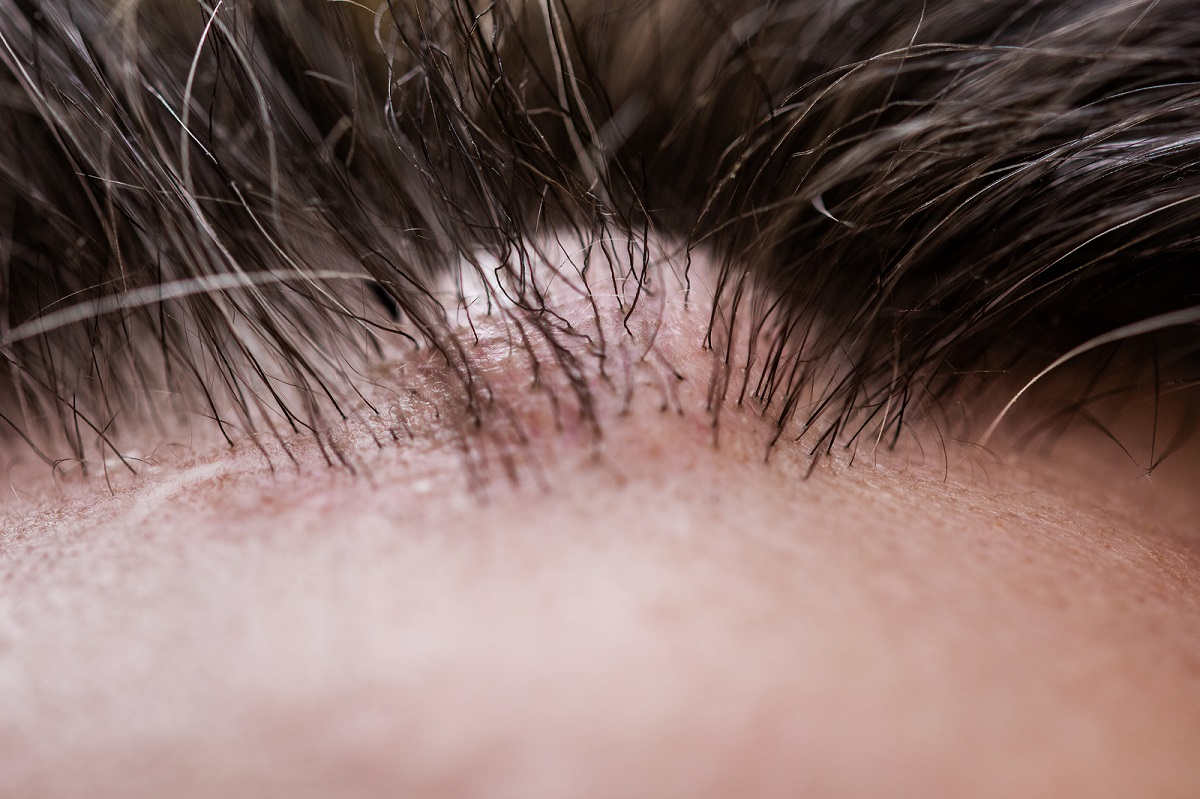 Haartransplantation Schwellungen